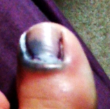 i promise this post about my tooth is not as gross as the blogs about my toe when it died.